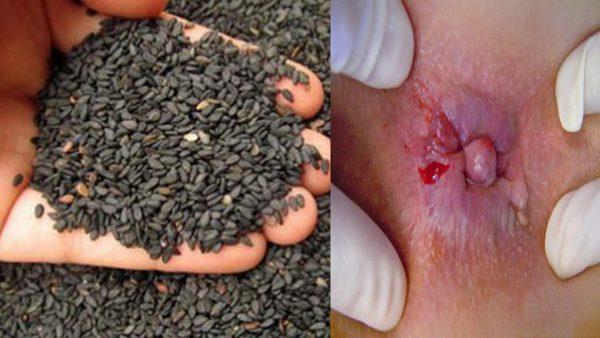 Công dụng của vừng đen chữa bệnh trĩ hiệu quả