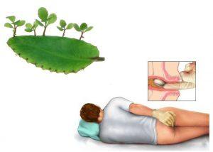 Cây lá bỏng thảo dược chữa bệnh trĩ tại nhà