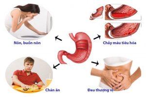 Dấu hiệu của bệnh đau dạ dày và cách trị đau dạ dày nhanh nhất
