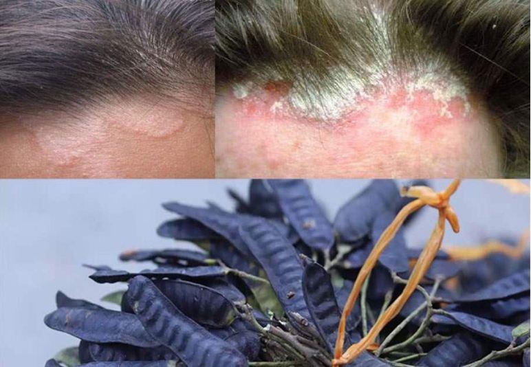 Bài thuốc đông y chữa nấm da đầu bằng bồ kết